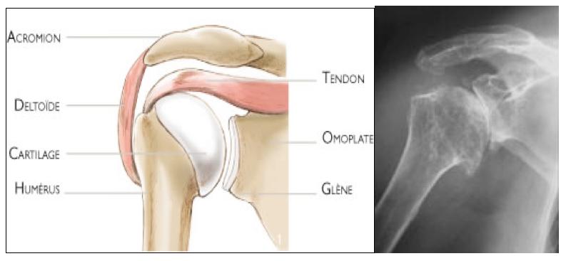l'arthrose de l'épaule
